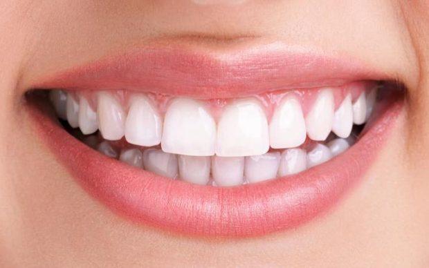 رسوم توضح زراعة الاسنان