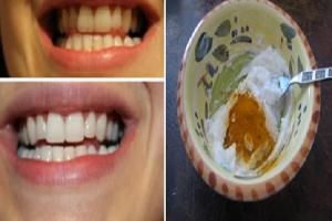 كيفية الحصول على أسنان بيضاء ولامعة باستخدام مكونات طبيعية من المنزل ونتائجها فورية