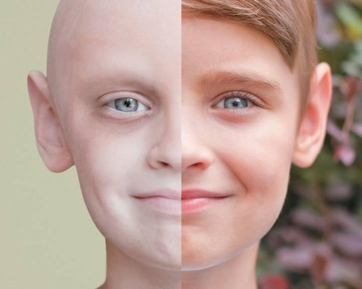 علامات إذا ظهرت عليك تنذرك بالإصابة بـ «السرطان» ويجب عمل الفحوصات فوراً