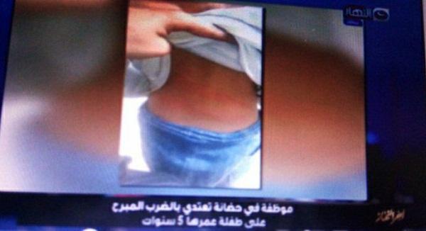 مُدرسة في حضانة تعتدي بالضرب على طفلة عمرها 5 سنوات وتدفعها من علي السلم بالفيوم