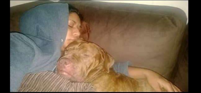 بالصور| ربته 9 سنوات فأكل ذراعها في دقائق وتم بتره.. كلب يهاجم صاحبته فجأة