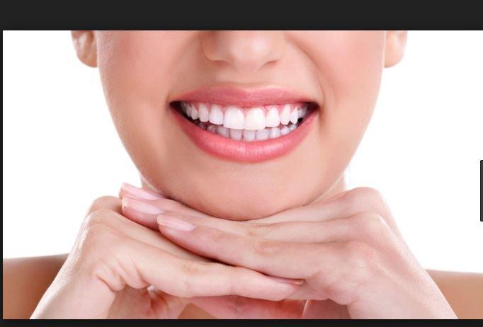 10 معلومات هامة عن تبييض الأسنان عند الطبيب