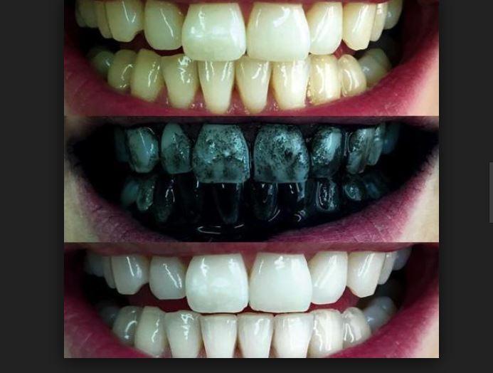 أسهل طريقة لـ تبييض الاسنان بالفحم