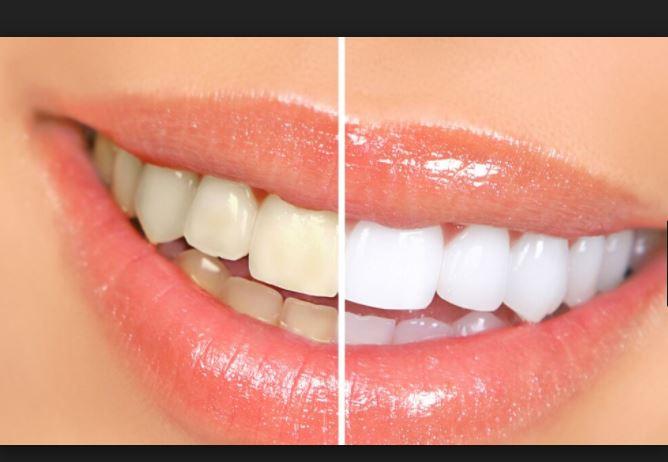 اسهل طرق منزلية لـ تبييض الاسنان في يوم