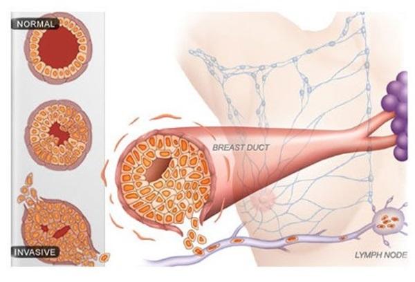 سرطان الثدي أعراضه وأسباب الإصابة به