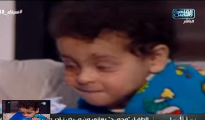 شاهد| طفل مصري يتعرق دماً.. والأم باكية تروي تفاصيل المأساة