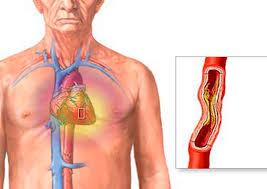 أمراض الأوعية الدموية