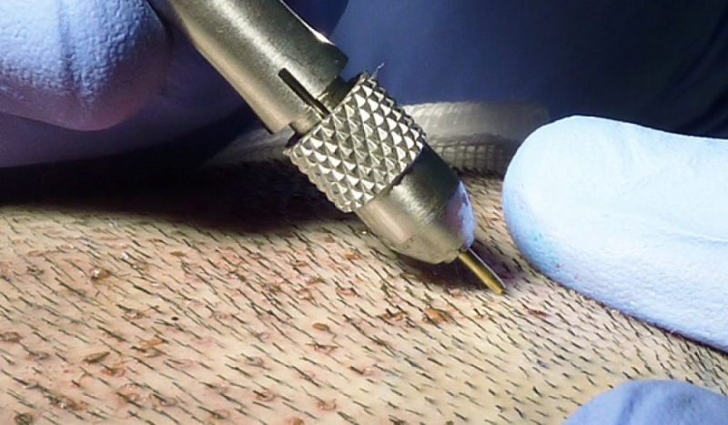 زراعة الشعر بتقنية DHI أو قلم تشوي