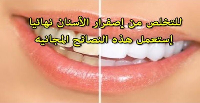 خلطة سحرية للتخلص من تسوس واصفرار الأسنان