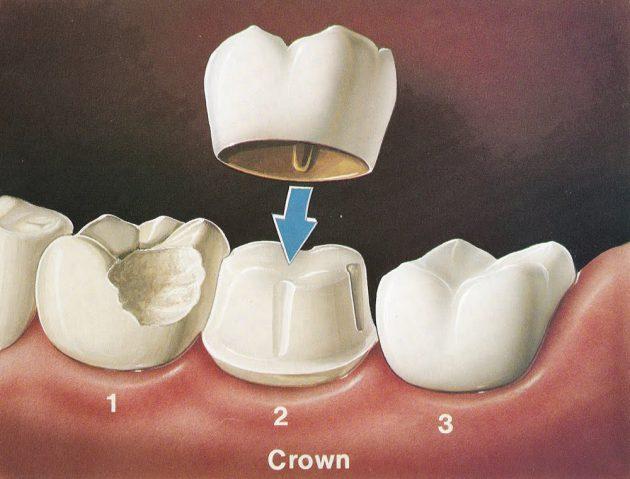 تلبيس الأسنان، طريقة تلبيس الأسنان، حالات تلبيس الأسنان، أهمية تلبيس الأسنان، أضرار تلبيس الأسنان، Dental Crowns