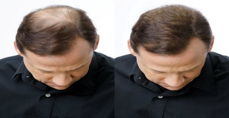 وداعًا للصلع | اكتشاف علاج جديد يمنع تساقط الشعر