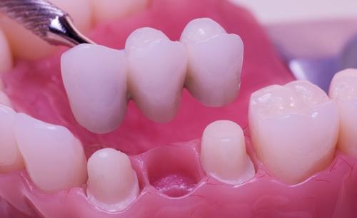 أهمية وطريقة تلبيس الأسنان