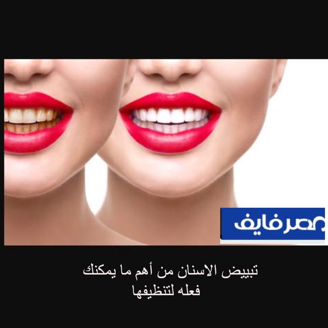 تبييض الاسنان من أهم الأمور للحفاظ عليها