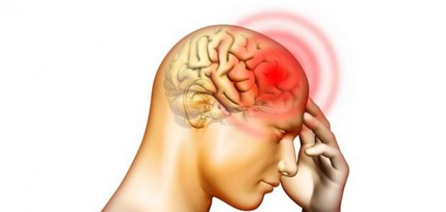 """""""الجلطة الدماغية"""" أسبابها وأعراضها وطرق الإسعافات الأولية لها !؟"""