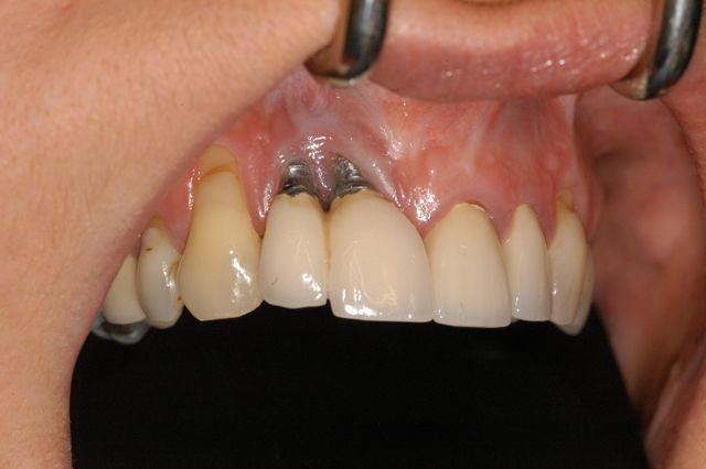 مشاكل زراعة الأسنان ومضاعفاتها الخطيرة التي قد تفقدك الأسنان المزروعة