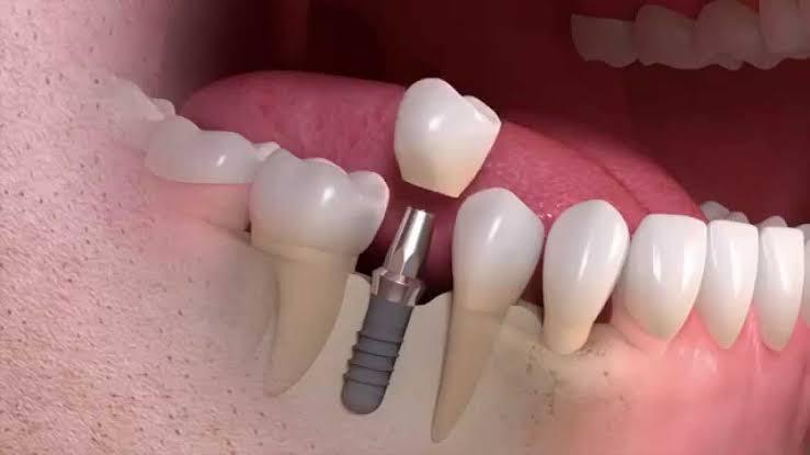 زراعة الأسنان-مميزات زراعة الأسنان تجعلها الأفضل على الإطلاق