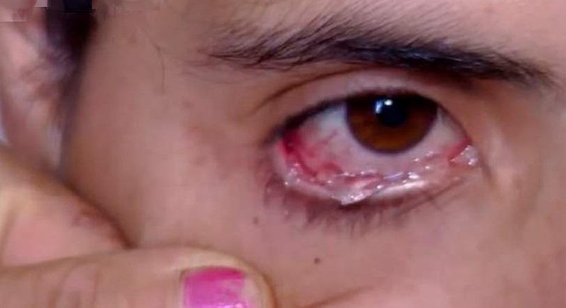 بالفيديو.. فتاة أرمنية تبكى دموع كريستال في حالة نادرة