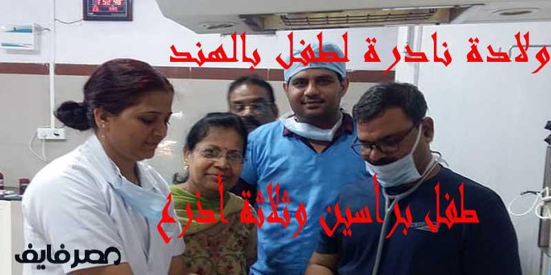 ولادة نادرة لطفل بالهند له رأسين و3 أذرع والأطباء في حيرة