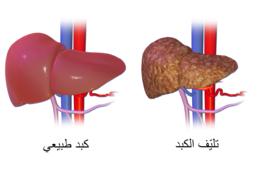 وصية الرسول محمد صلى الله عليه وسلم حتى لا تصاب بالتليف الكبدي