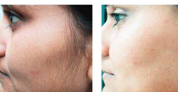 أسباب وجود شعر زائد في الوجه وطرق ازالته؟