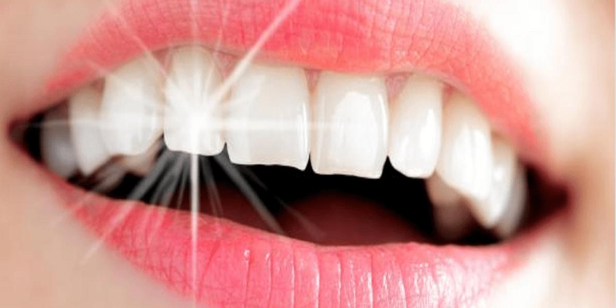 وصفات طبيعية لتبييض الأسنان بمكونات سهلة وبسيطة