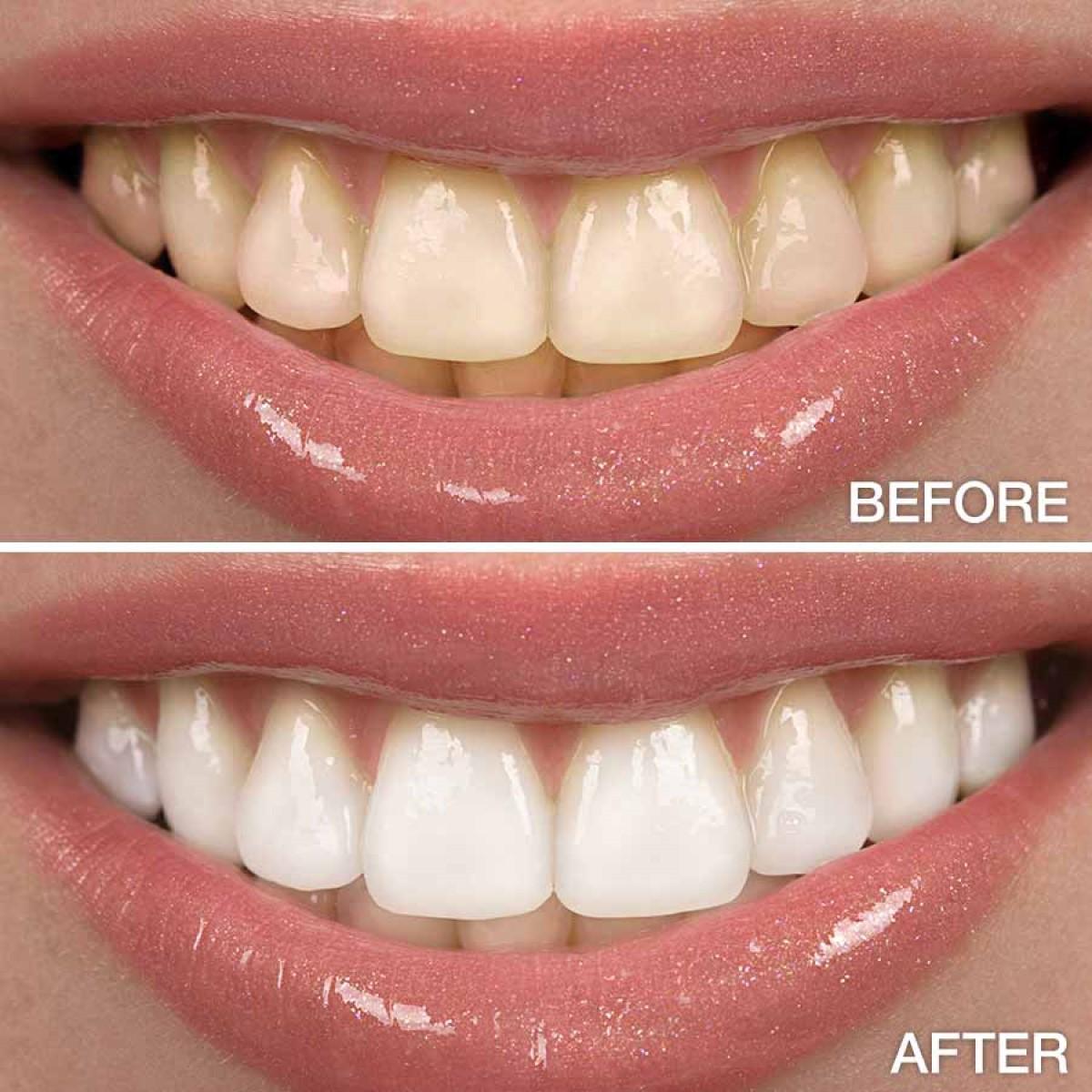 تبييض الأسنان من أول استخدام لهذه الوصفة الطبيعية الممتازة
