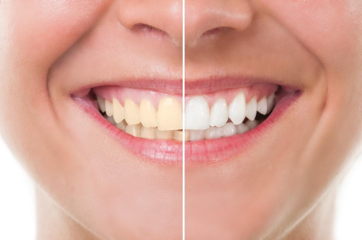 تبييض الأسنان من أول استخدام لهذه الوصفة الطبيعية الممتازة 2
