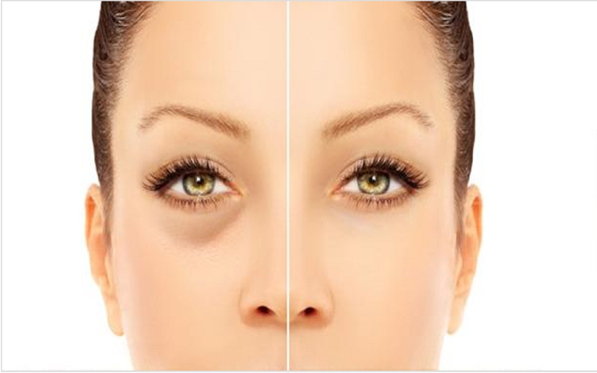 أفضل الوصفات لإزالة انتفاخ تحت العين بمكونات سهلة وبسيطة