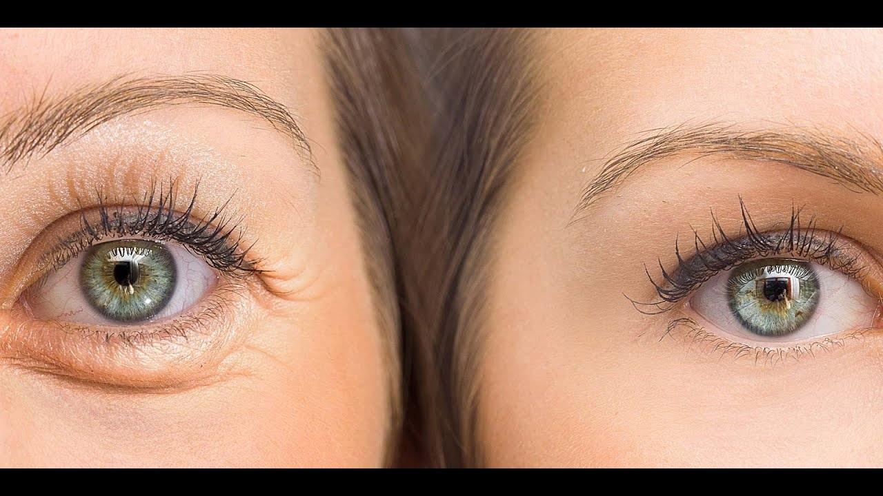 علاج سريع ورخيص للتخلص من العيون المنتفخة والهالات السوداء