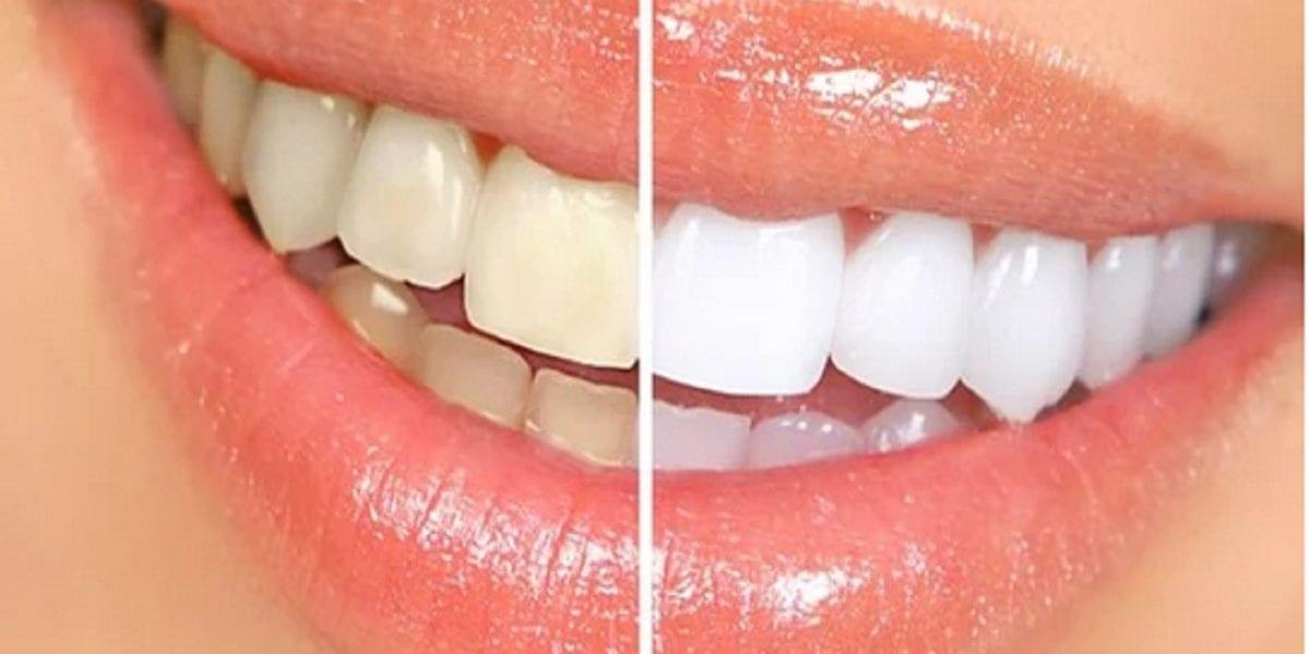 لابتسامة هوليود..طريقة صنع معجون لتبييض الأسنان في المنزل
