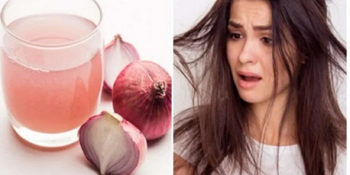 علاج تساقط الشعر…فوائد مذهلة لماء البصل المغلي