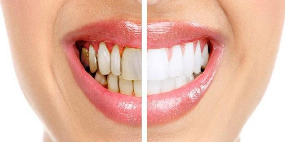 خطوات بسيطة ورائعة لمنع تسوس الأسنان يجب اتباعها
