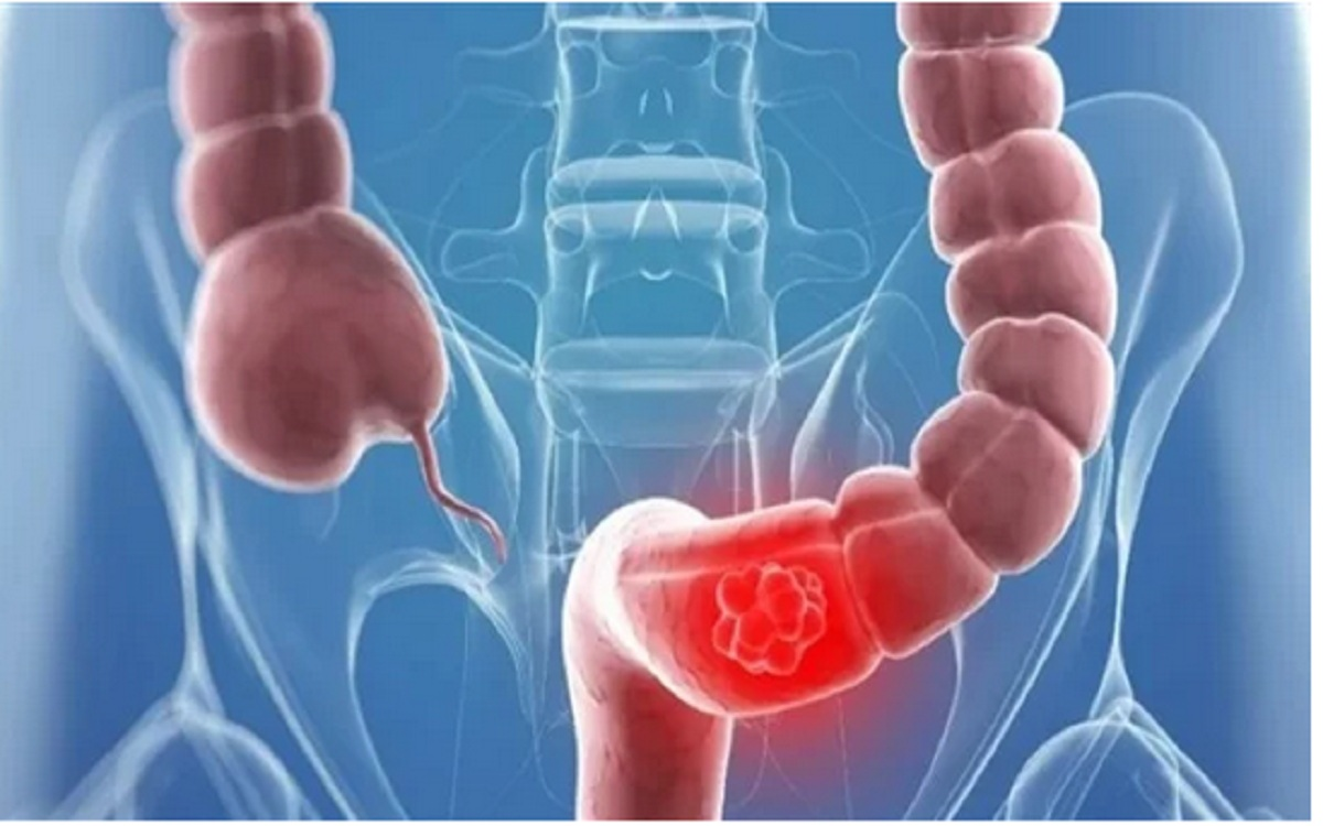 Weight Loss And Excessive Bloating The Most Prominent Symptoms Of Colon Cancer