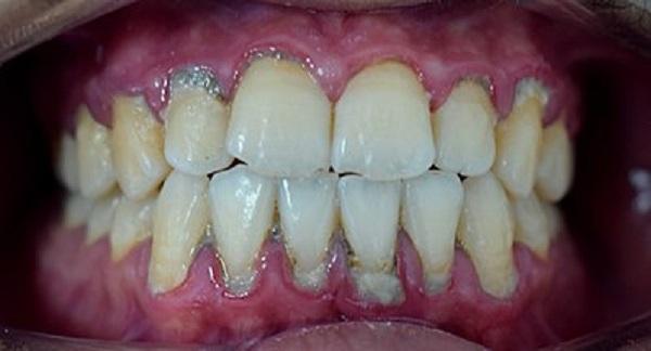طريقة سحريةرخيصة لإزالة جير الأسنان والتخلص من رائحة الفم الكريهة طوال اليوم