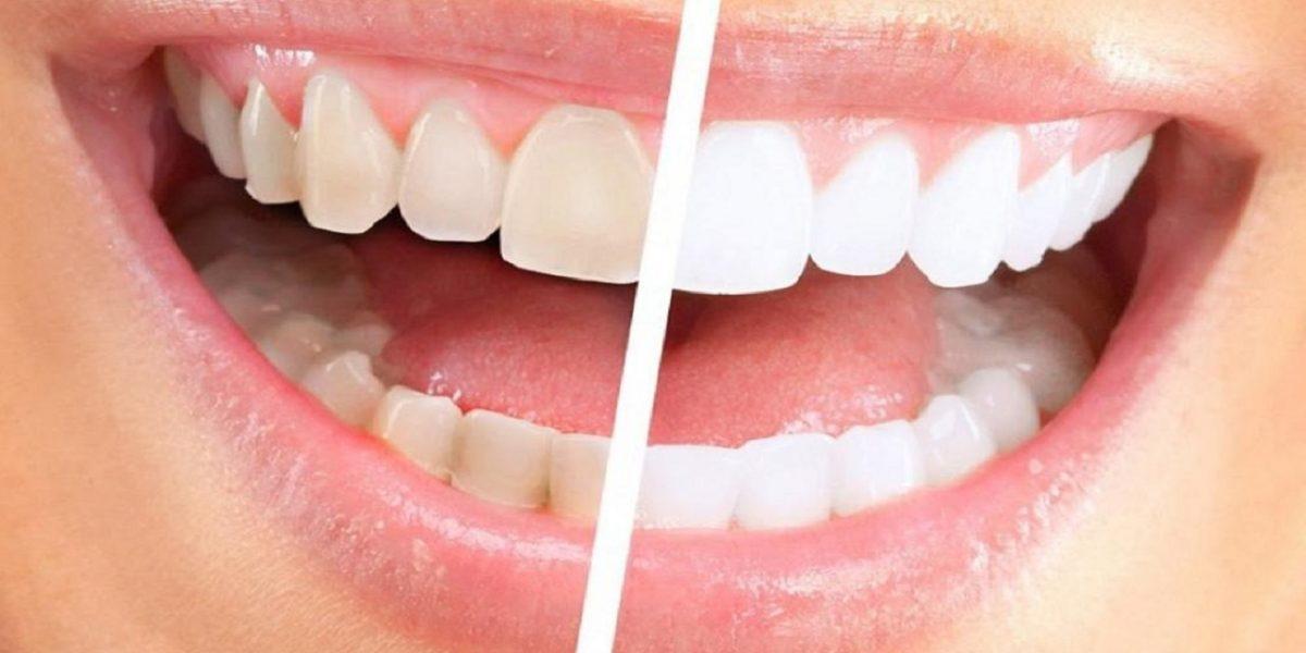 طريقة سحرية رخيصة لإزالة جير الأسنان والتخلص من رائحة الفم الكريهة طوال اليوم