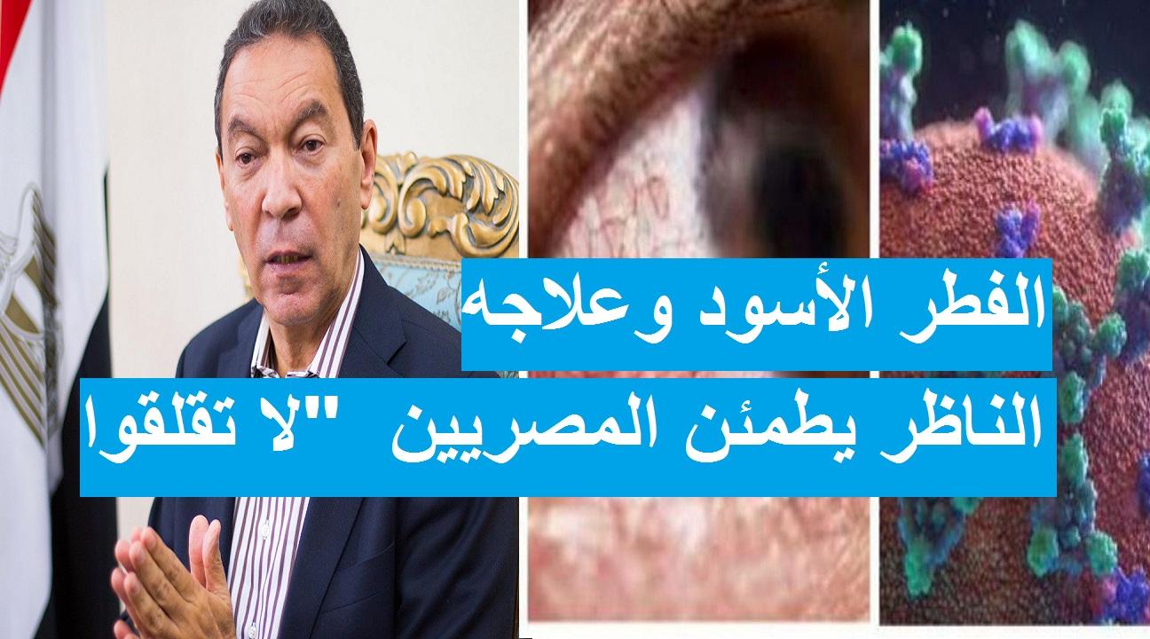"""هاني الناظر.. 5 فئات الأكثر عرضة للإصابة بالفطر الأسود ويكشف علاجه ويطمئن المصريين """"غير معدي"""""""