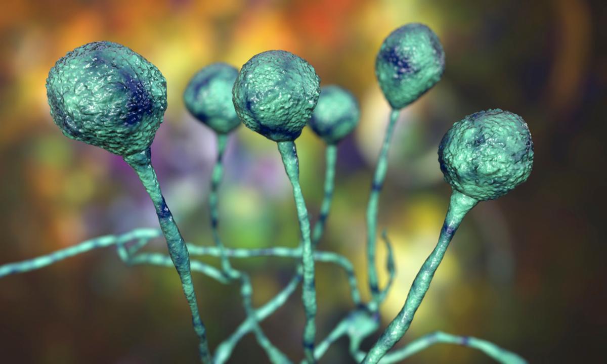 أعراض الفطر الأسود.. كيف ينتقل؟ وكيف يتم علاجه؟